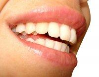 laser do wybielania zębów